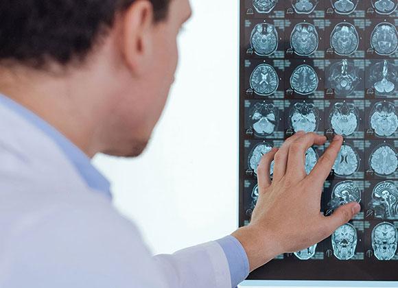 Γενικό Νευρολογικό Ιατρείο