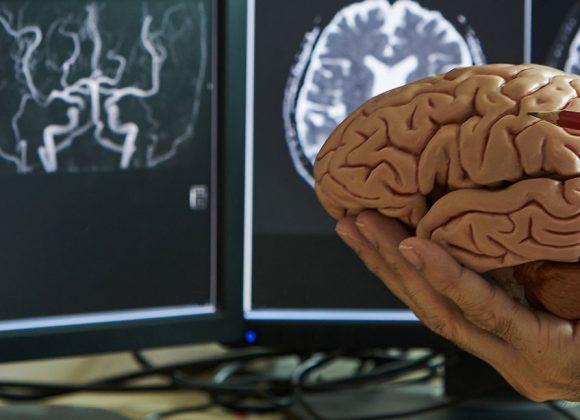 Πότε είναι ο κατάλληλος χρόνος για νευροδιεγέρτη DBS